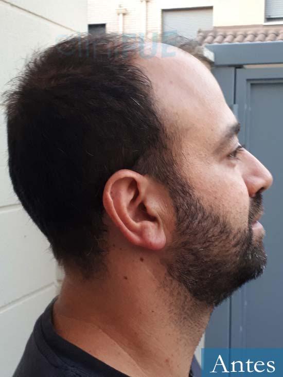 Javier-38-Guadalajara-trasplante-capilar-turquia-antes-3