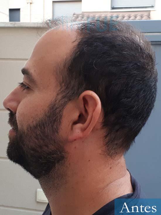 Javier-38-Guadalajara-trasplante-capilar-turquia-antes-4