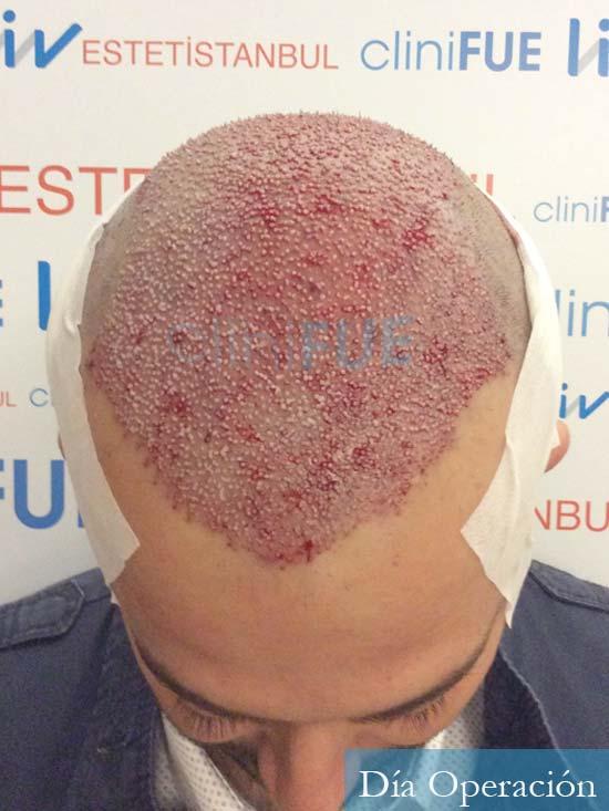 Javier-38-Guadalajara-trasplante-capilar-turquia-dia operacion 2