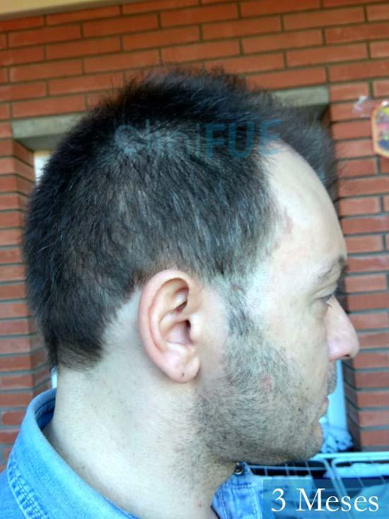 Javier 41 Barcelona injerto de pelo turquia 3 meses 3