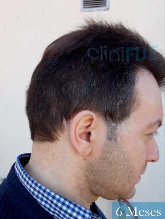 Javier 41 Barcelona injerto de pelo turquia 6 meses 3