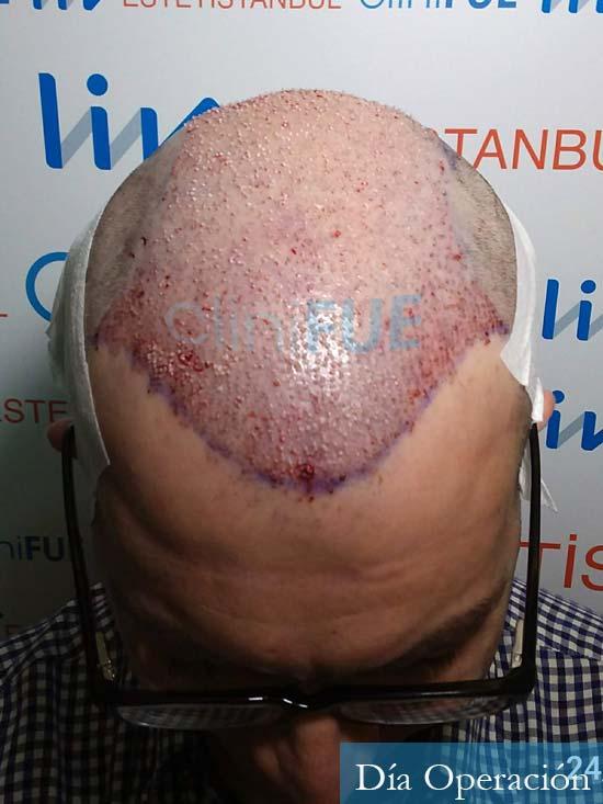 Javier 41 Barcelona injerto de pelo turquia dia operacion 2