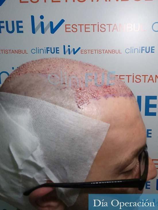 Javier 41 Barcelona injerto de pelo turquia dia operacion 3