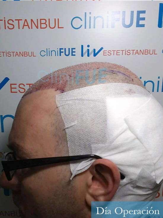 Javier 41 Barcelona injerto de pelo turquia dia operacion 4