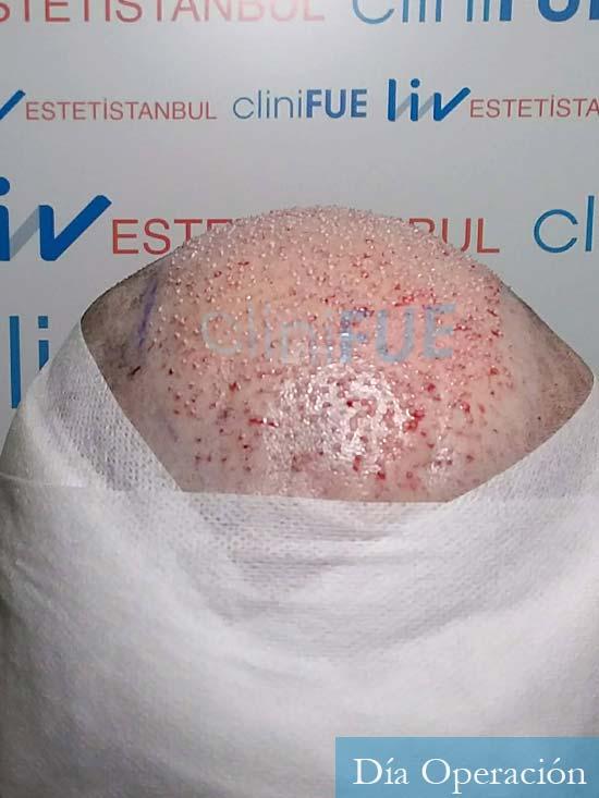 Javier 41 Barcelona injerto de pelo turquia dia operacion 5