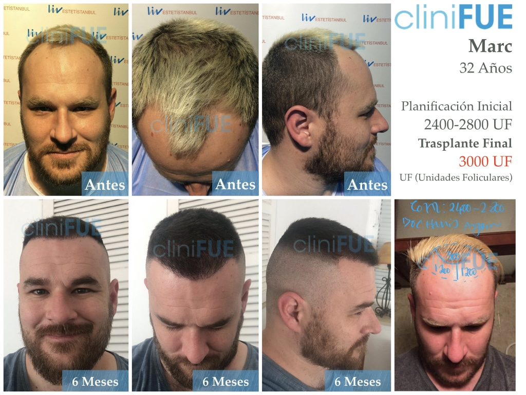 Marc-32-Islas Baleares-trasplante-capilar-turquia 6 meses-2