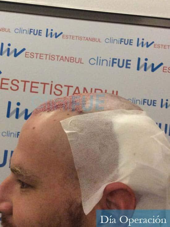 Marc-32-Islas Baleares-trasplante-capilar-turquia-dia operacion 4