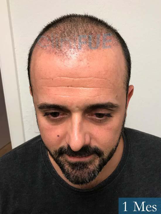 David 35 Murcia trasplante pelo 1 mes