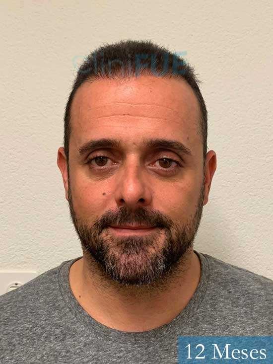 David 35 Murcia trasplante pelo 12 meses