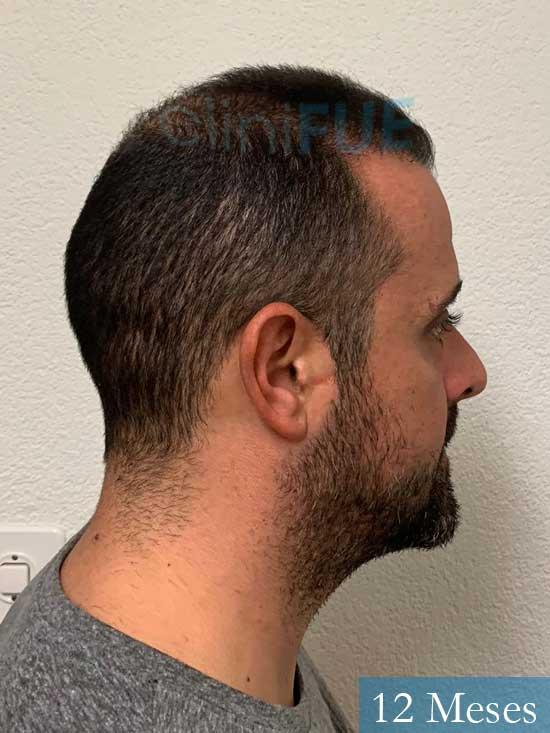 David 35 Murcia trasplante pelo 12 meses 3
