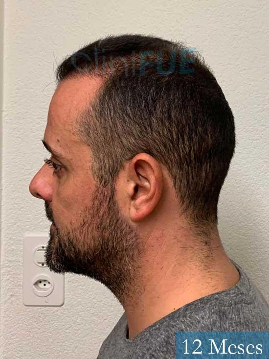 David 35 Murcia trasplante pelo 12 meses 4