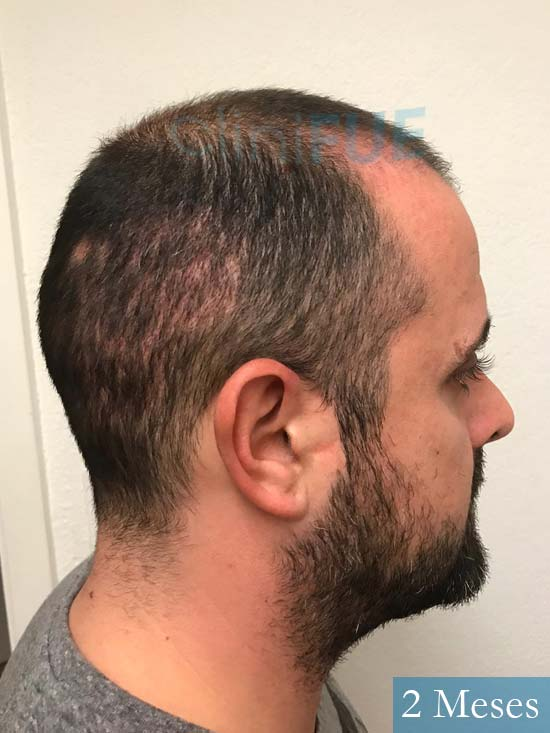 David 35 Murcia trasplante pelo 2 meses 4