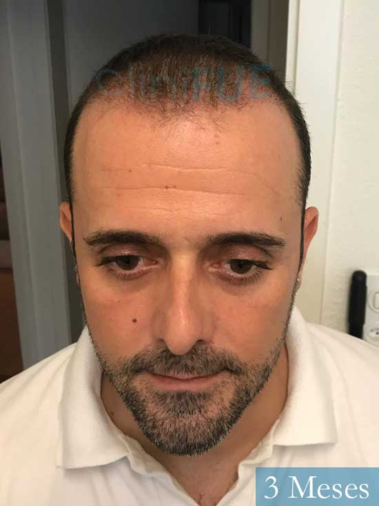 David 35 Murcia trasplante pelo 3 meses