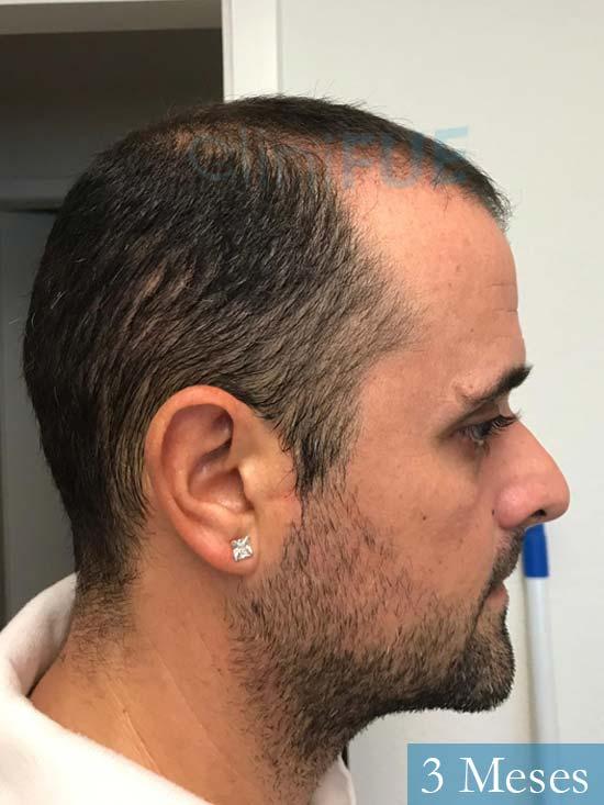 David 35 Murcia trasplante pelo 3 meses 3