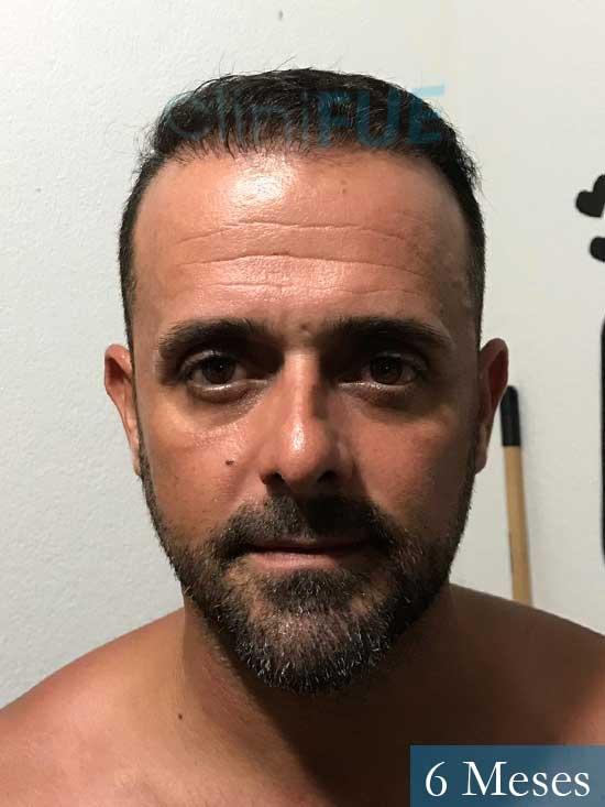 David 35 Murcia trasplante pelo 6 meses