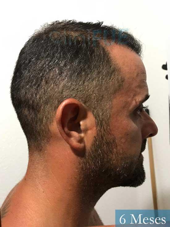 David 35 Murcia trasplante pelo 6 meses 2