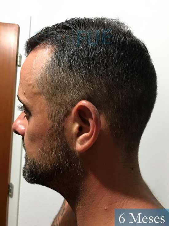 David 35 Murcia trasplante pelo 6 meses 5