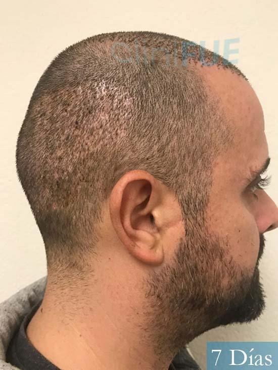 David 35 Murcia trasplante pelo 7 dias 3