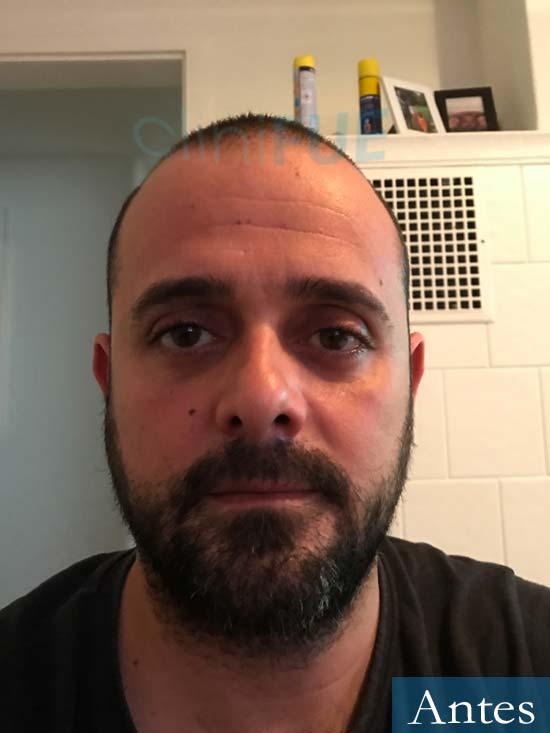 David 35 Murcia trasplante pelo antes