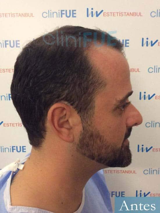 David 35 Murcia trasplante pelo antes 3