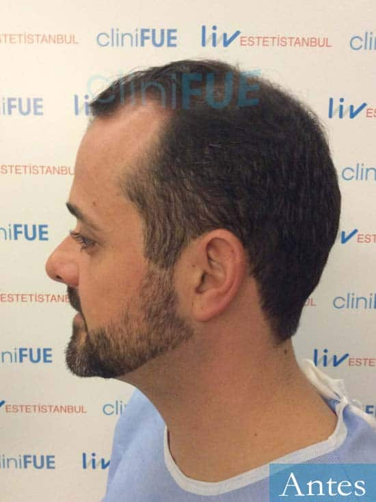 David 35 Murcia trasplante pelo antes 4