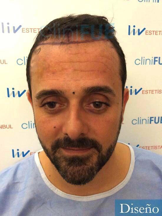 David 35 Murcia trasplante pelo antes diseno