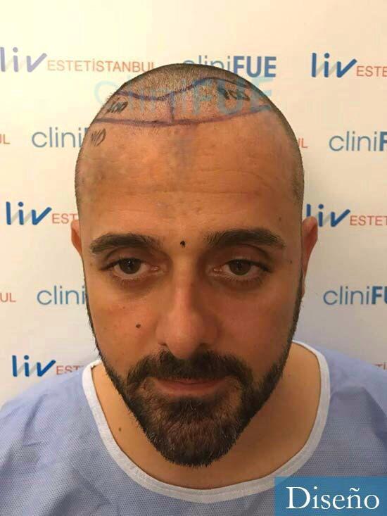 David 35 Murcia trasplante pelo antes diseno 2