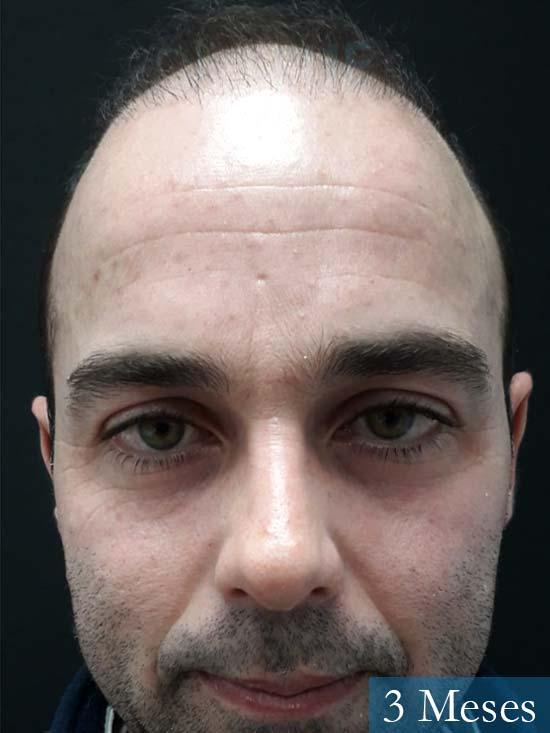 Paco 27 Alicante trasplante pelo 2 meses