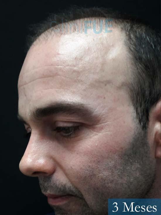 Paco 27 Alicante trasplante pelo 2 meses 4