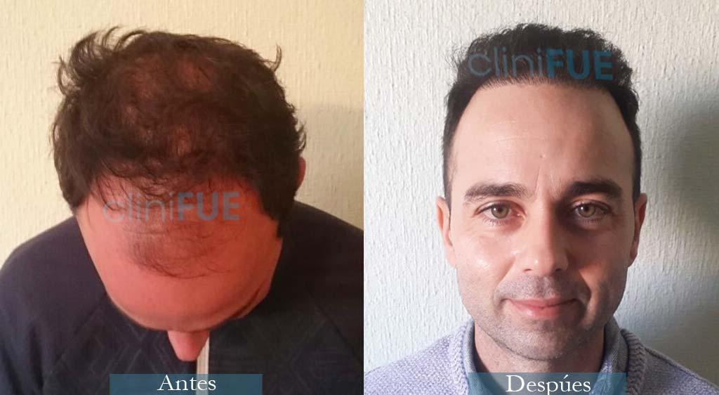Injerto capilar de Paco 37 Años de Alicante con cliniFUE