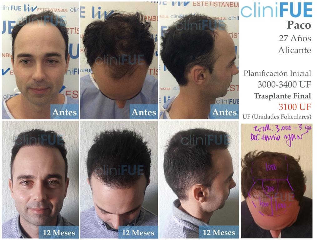 Paco-27-Alicante-trasplante-turquia-5