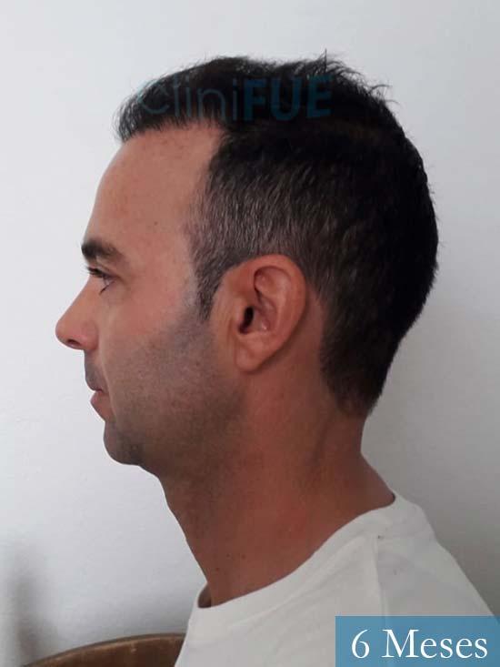 Paco 27 Alicante trasplante pelo 6 meses 6