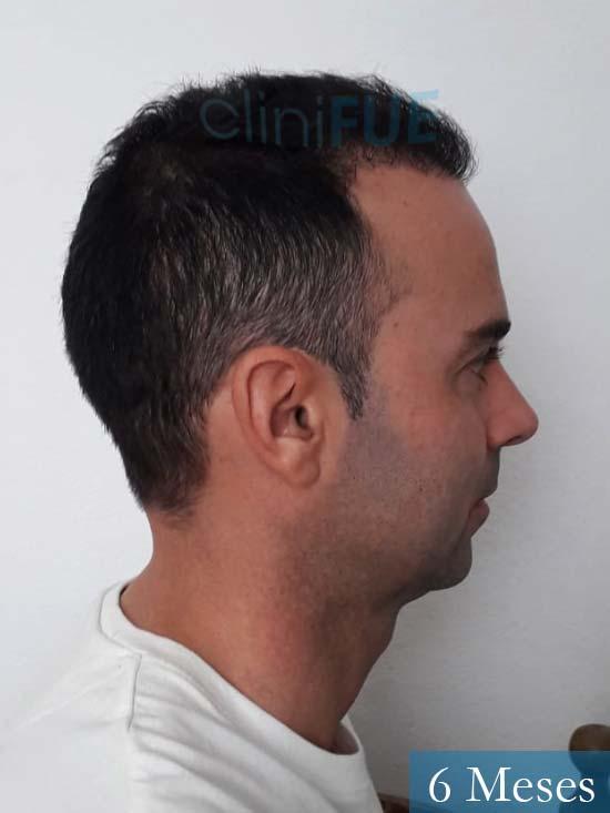Paco 27 Alicante trasplante pelo 6 meses 3