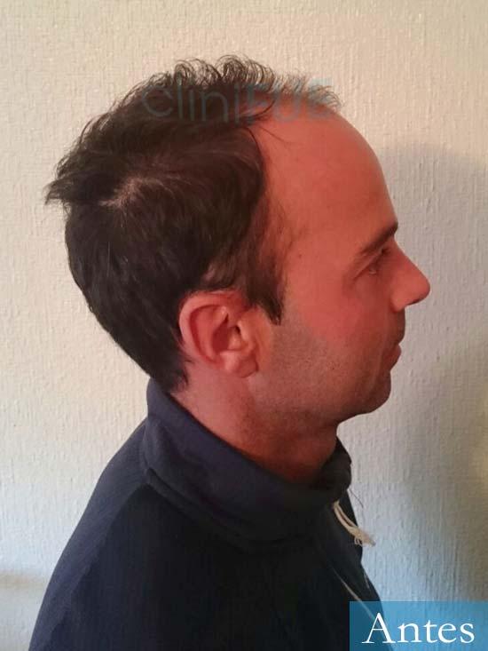 Paco 27 Alicante trasplante pelo antes 3