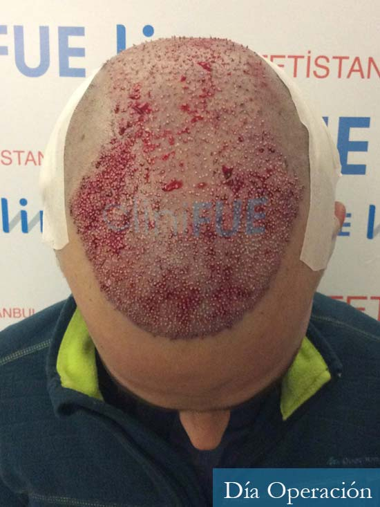 David 35 Murcia trasplante pelo antes diseno 4