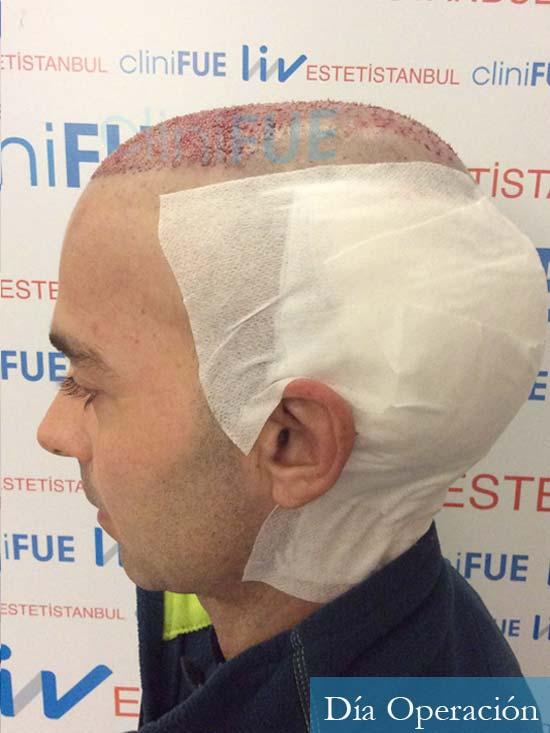 Paco 27 Alicante trasplante pelo dia operacion 6