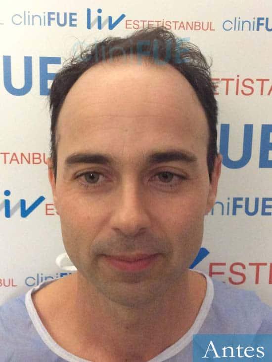 Paco 27 Alicante trasplante pelo dia operacion antes