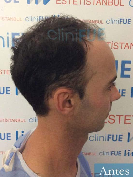Paco 27 Alicante trasplante pelo dia operacion antes 3