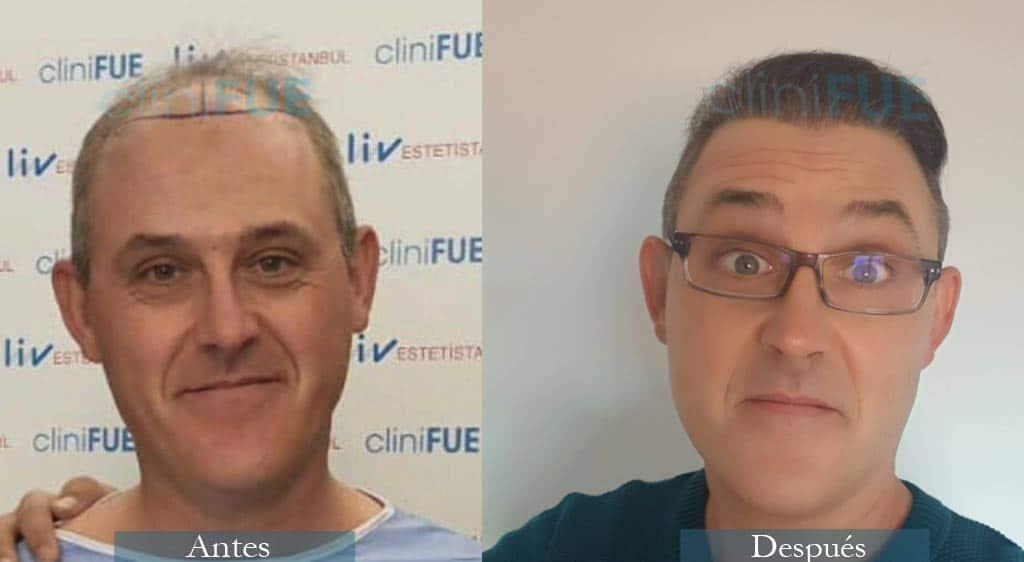 Injerto capilar de Daniel 42 Años de Ciudad Real con cliniFUE ¡Qué contento está!