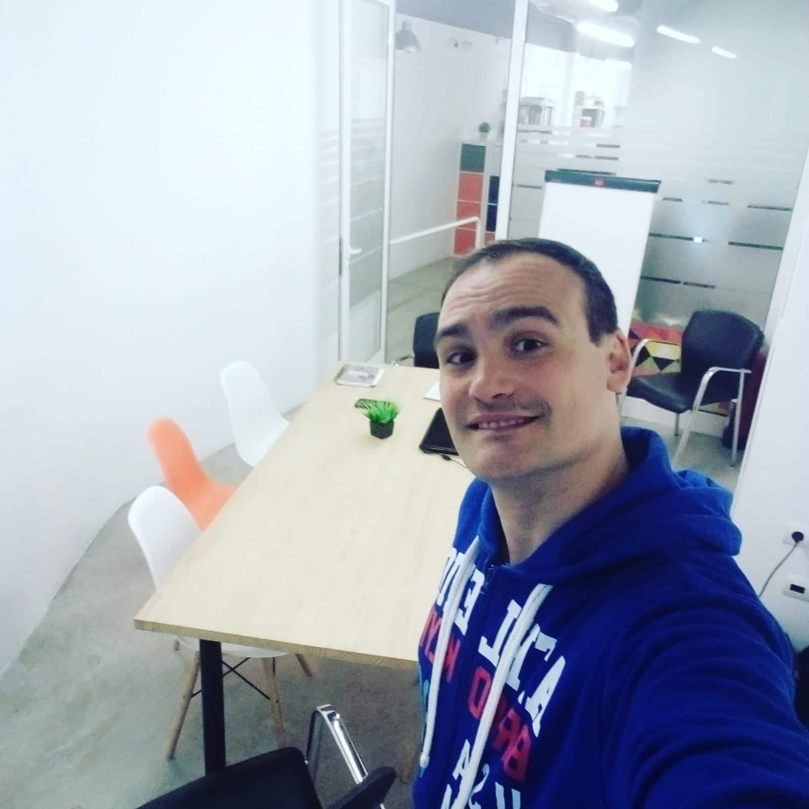 Antes del injerto capilar en Turquía con cliniFUE de Raul