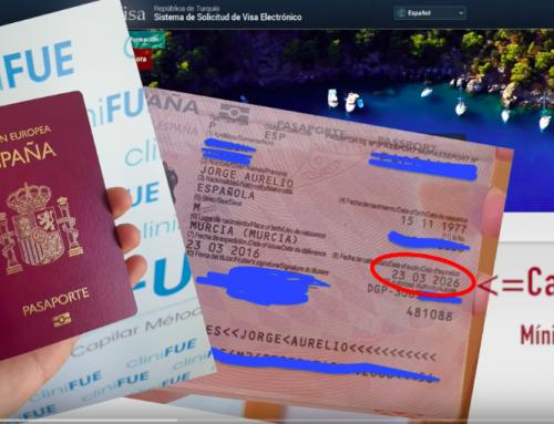 Ya no será necesario un visado para un injerto capilar en Turquía.