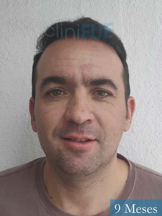 Angel Carlos 42 Caceres injerto de pelo dia operacion 9 meses 1