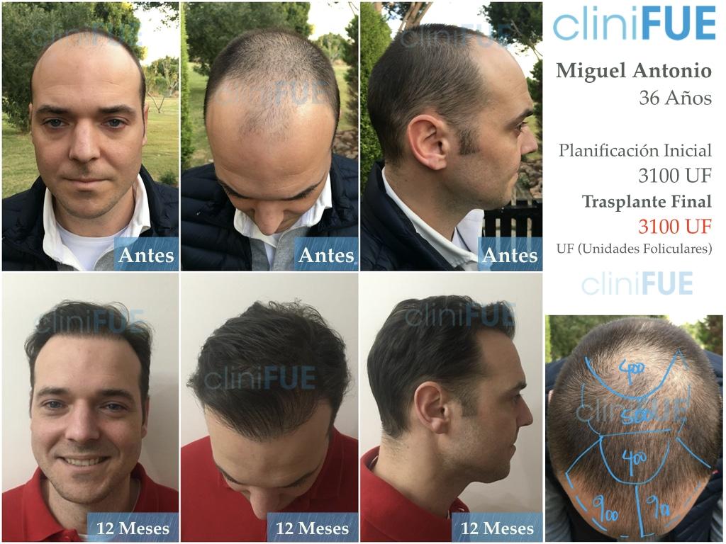 Miguel Antonio_trasplante_pelo_dia_operacion_