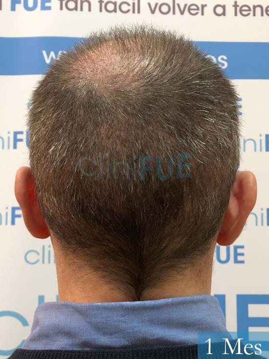 Cristobal 46 Bilbao injerto capilar turquia 1 mes desde trasplante de pelo