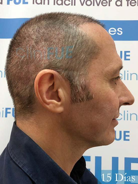 Cristobal 46 Bilbao injerto capilar turquia 15 dias desde trasplante de pelo