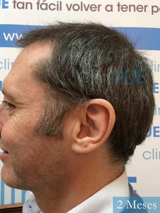 Cristobal 46 Bilbao injerto capilar turquia 2 meses desde trasplante de pelo
