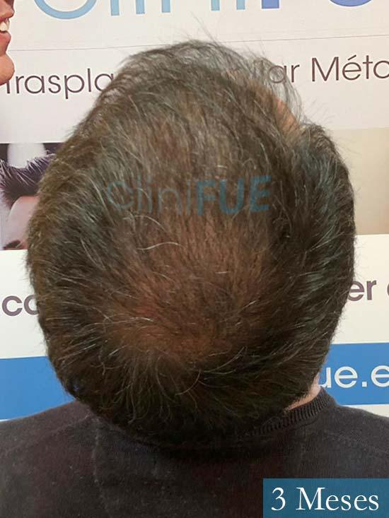 Cristobal 46 Bilbao injerto capilar turquia 3 meses desde trasplante de pelo