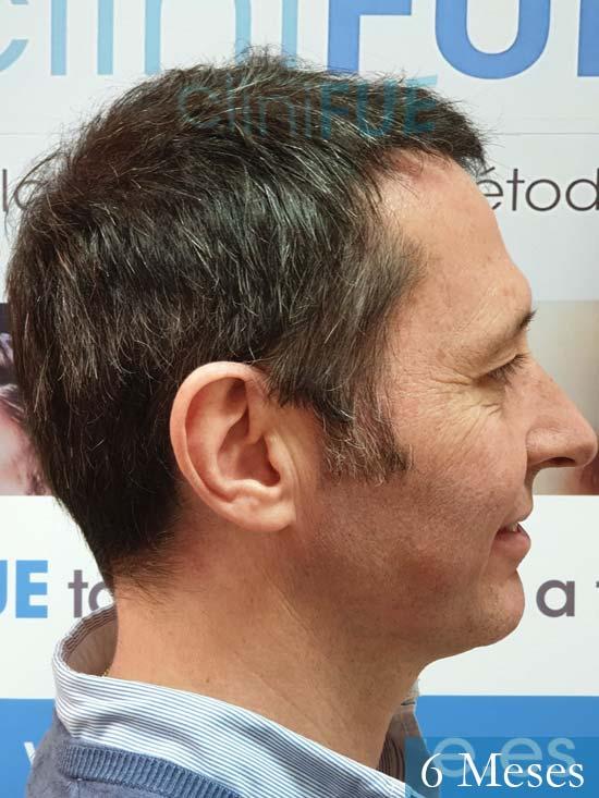 Cristobal 46 Bilbao injerto capilar turquia 6 meses desde trasplante de pelo