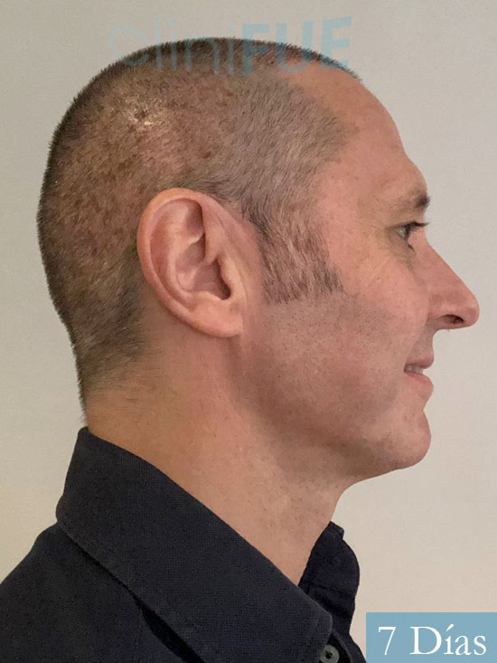 Cristobal 46 Bilbao injerto capilar turquia 7 dias desde trasplante de pelo
