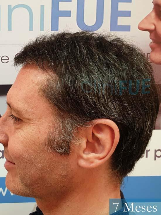 Cristobal 46 Bilbao injerto capilar turquia 7 meses desde trasplante de pelo